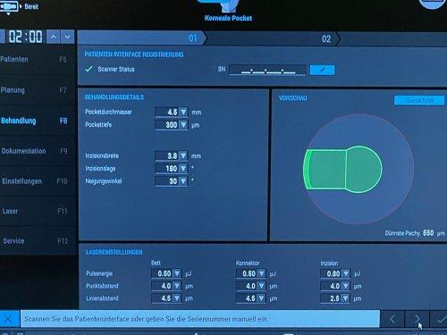 Blick auf den Monitor des Lasers.