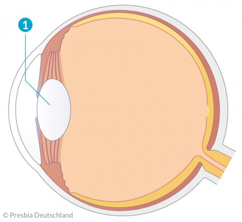 Illustration des Auges mit einer kugeligen Linse
