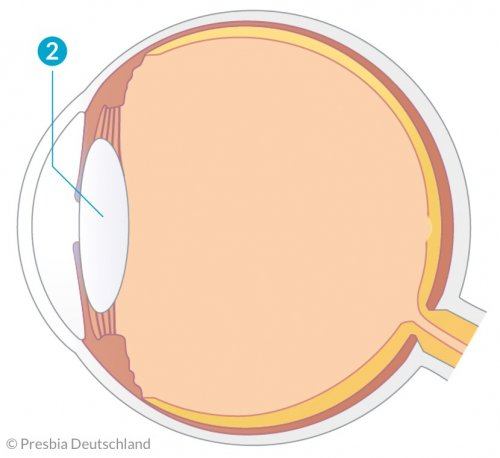 Illustration des Auges mit einer abgeflachten Linse